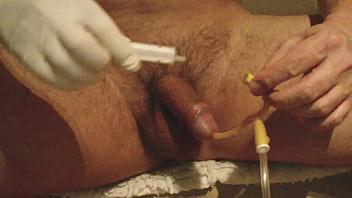 Catheter play tgp