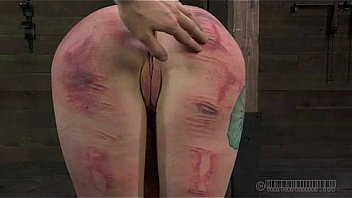 Pictures sex bruised butts